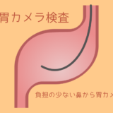 【詳細】胃カメラ検査について