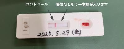 抗体検査結果